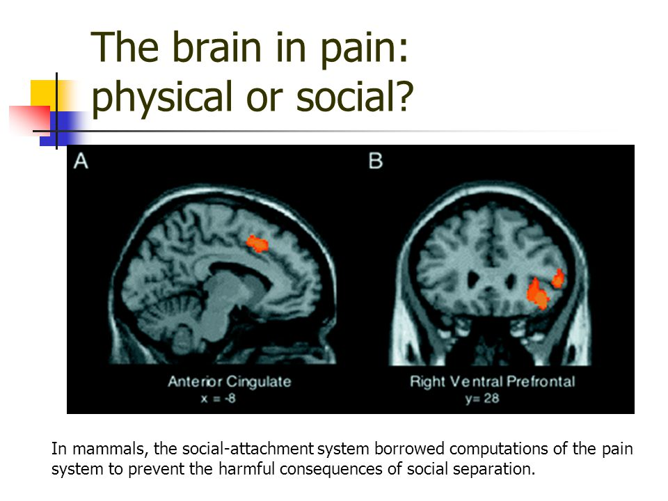 The brain in pain: physical or social.