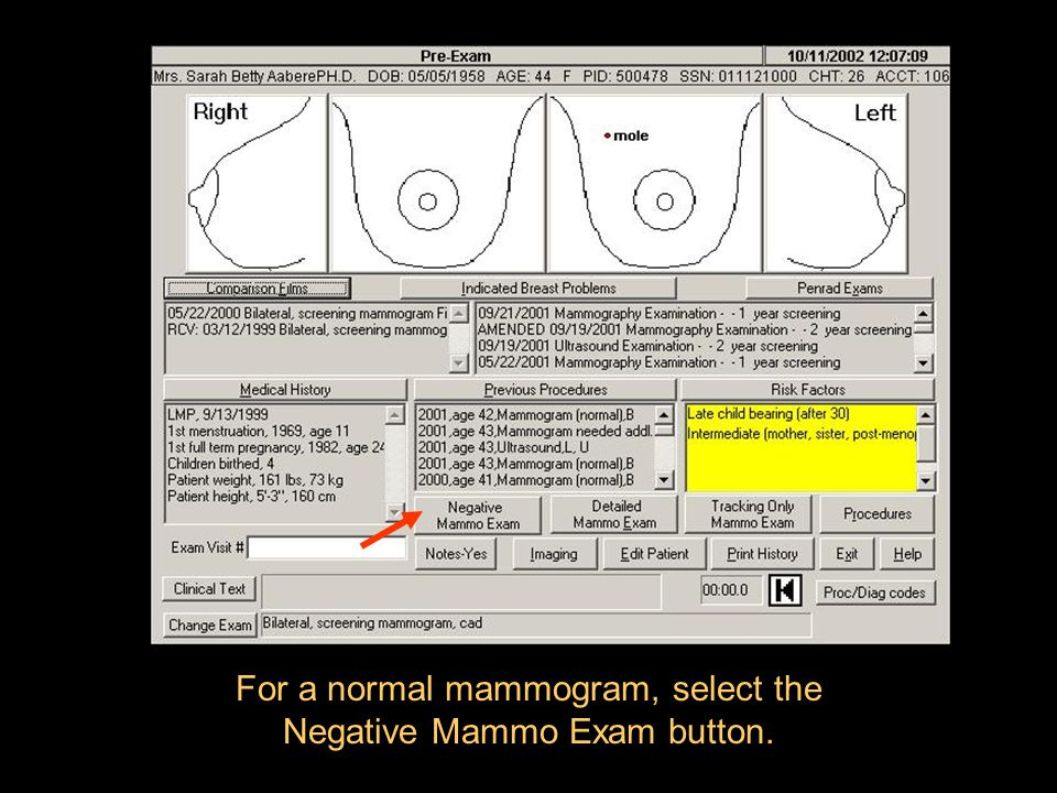 For a normal mammogram, select the Negative Mammo Exam button.
