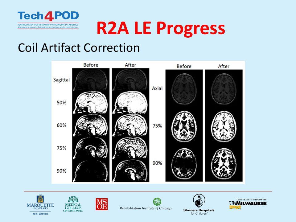 R2A LE Progress Coil Artifact Correction