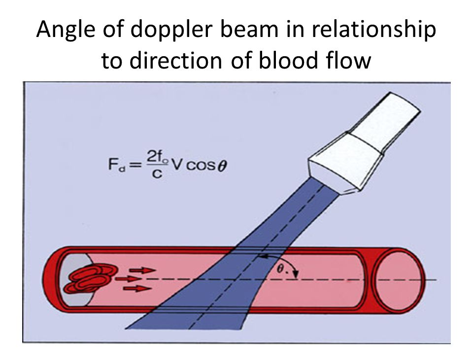 Angle of doppler beam in relationship to direction of blood flow