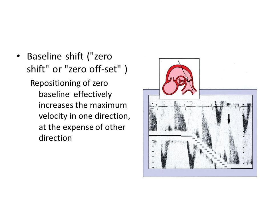 Baseline shift ( zero shift or zero off-set ) Repositioning of zero baseline effectively increases the maximum velocity in one direction, at the expense of other direction