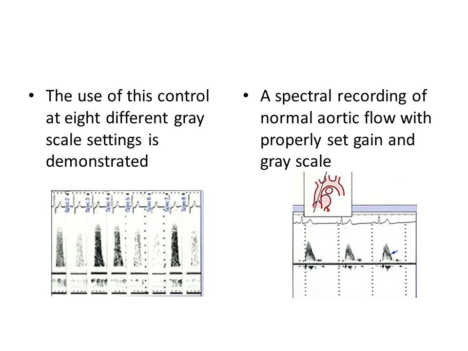 The use of this control at eight different gray scale settings is demonstrated A spectral recording of normal aortic flow with properly set gain and gray scale