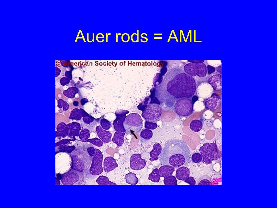 Auer rods = AML