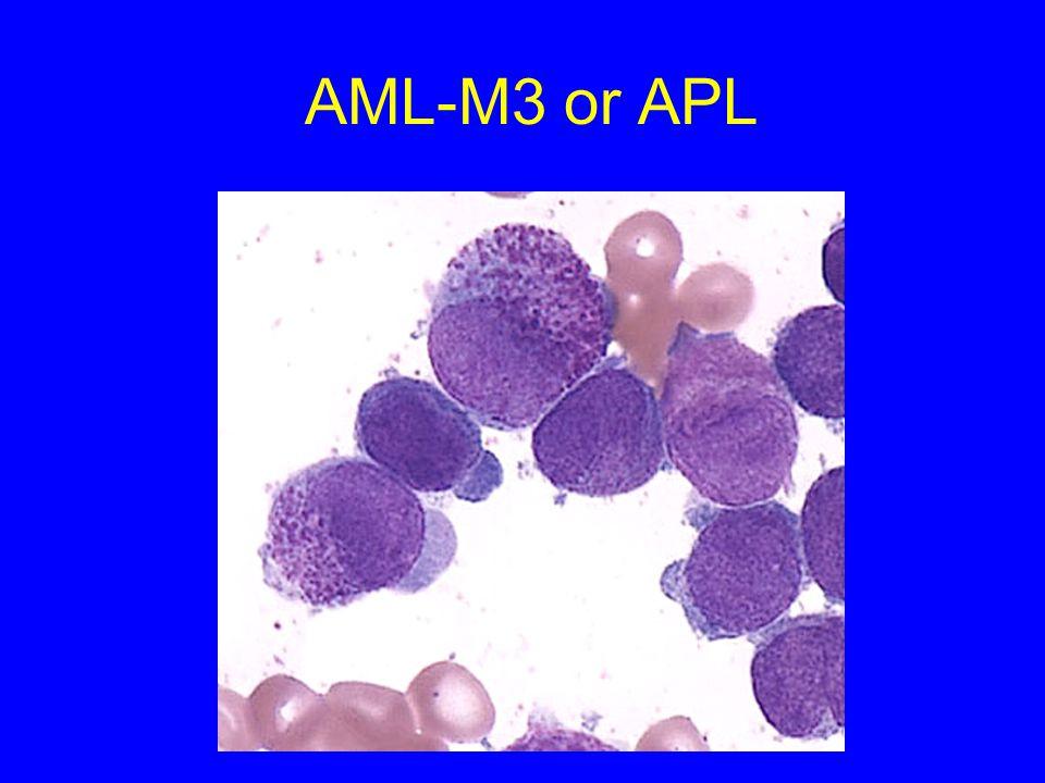 AML-M3 or APL