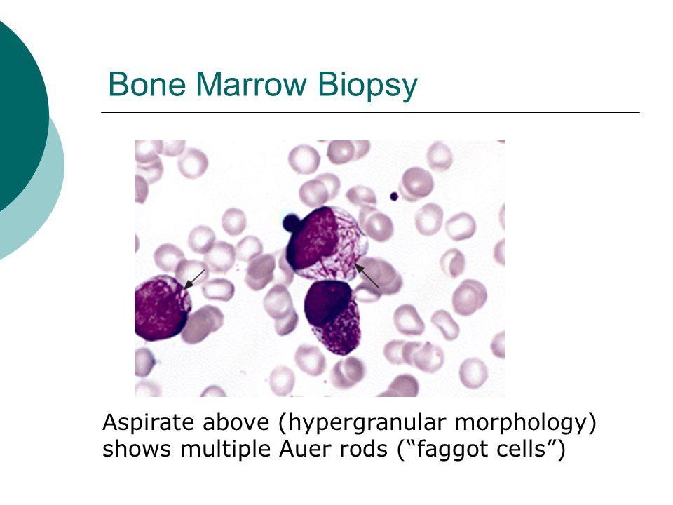 "Bone Marrow Biopsy Aspirate above (hypergranular morphology) shows multiple Auer rods (""faggot cells"")"