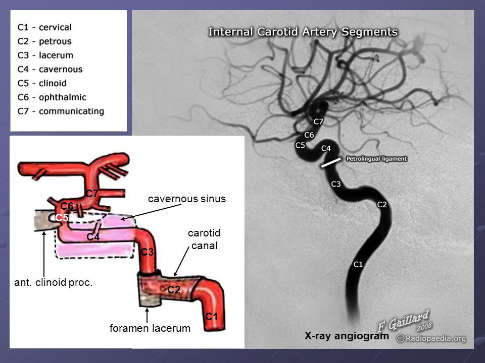 C1 C2 C3 C4 C5 C6 C7 ant. clinoid proc. cavernous sinus foramen lacerum carotid canal X-ray angiogram