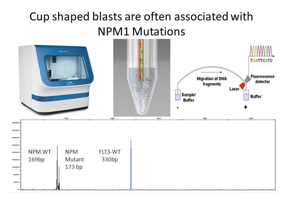 Cup shaped blasts are often associated with NPM1 Mutations NPM WT 169bp NPM Mutant 173 bp FLT3-WT 330bp