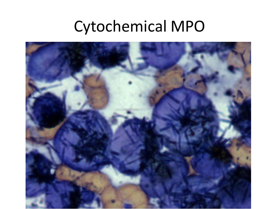 Typical morphology of myeloid blasts with cup-like nuclear invagination in AML.