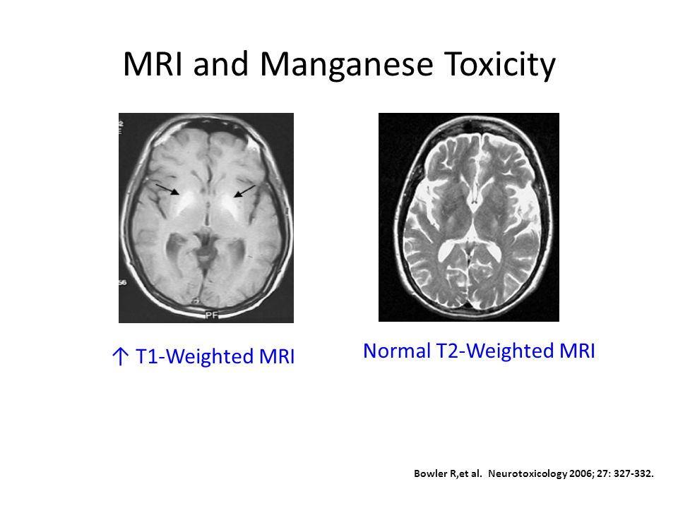 MRI and Manganese Toxicity ↑ T1-Weighted MRI Normal T2-Weighted MRI Bowler R,et al.