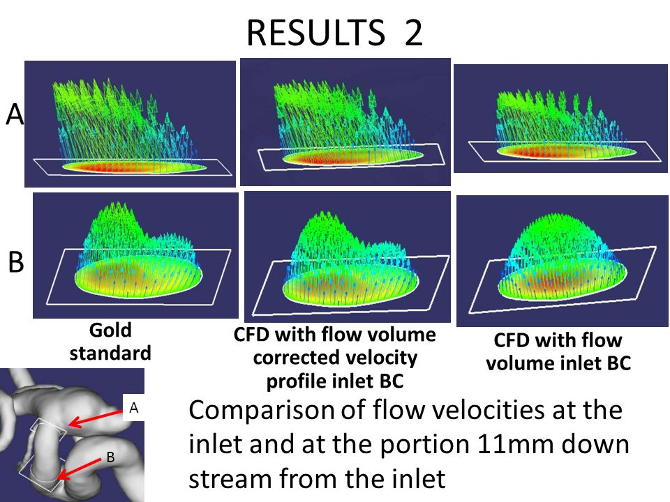 RESULTS 2 Comparison of flow velocities at the inlet and at the portion 11mm down stream from the inlet Gold standard CFD with flow volume corrected v
