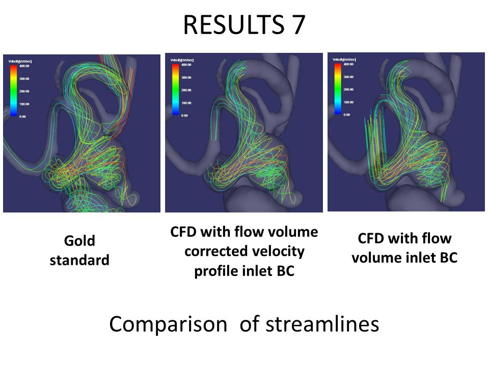 RESULTS 7 Comparison of streamlines Gold standard CFD with flow volume corrected velocity profile inlet BC CFD with flow volume inlet BC