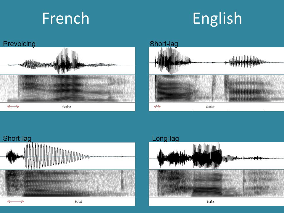 French English Prevoicing Short-lag Long-lag