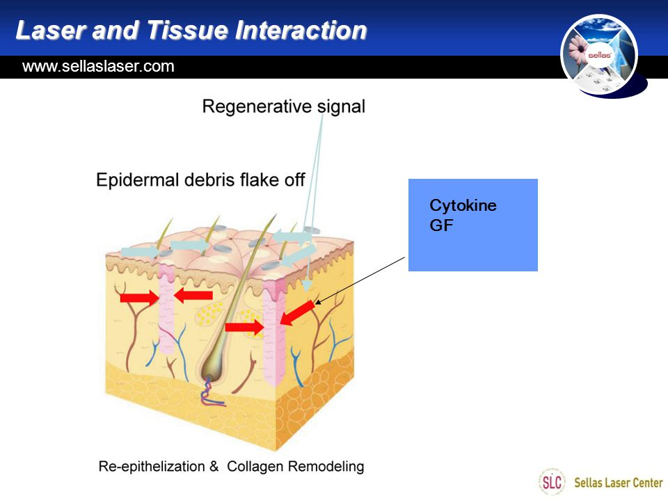www.sellas.kr Laser and Tissue Interaction Cytokine GF www.sellaslaser.com