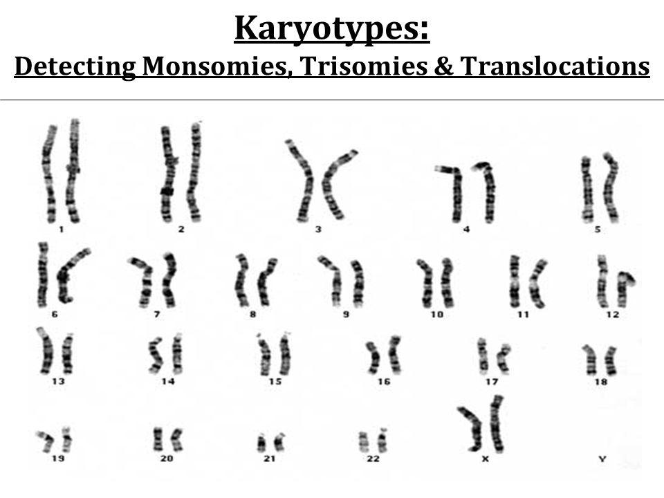 Karyotypes : Detecting Monsomies, Trisomies & Translocations