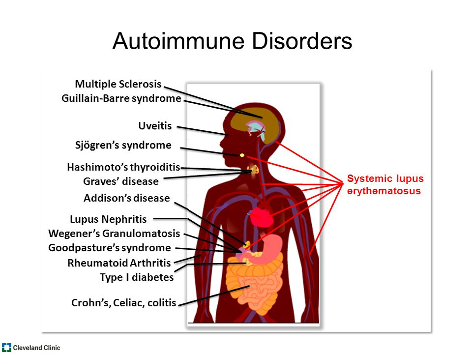 Systemic lupus erythematosus Autoimmune Disorders
