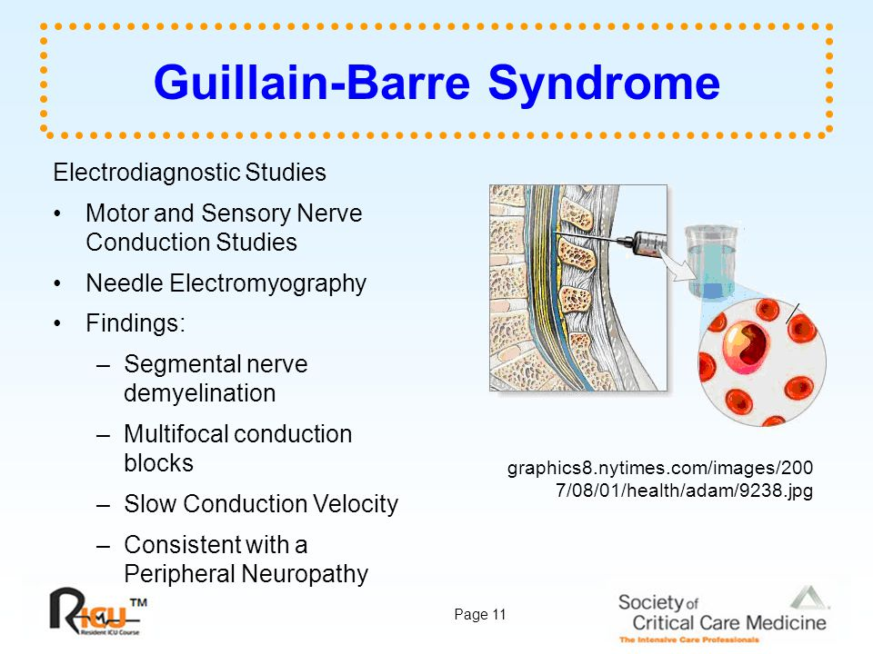 Page 11 Guillain-Barre Syndrome Electrodiagnostic Studies Motor and Sensory Nerve Conduction Studies Needle Electromyography Findings: –Segmental nerv