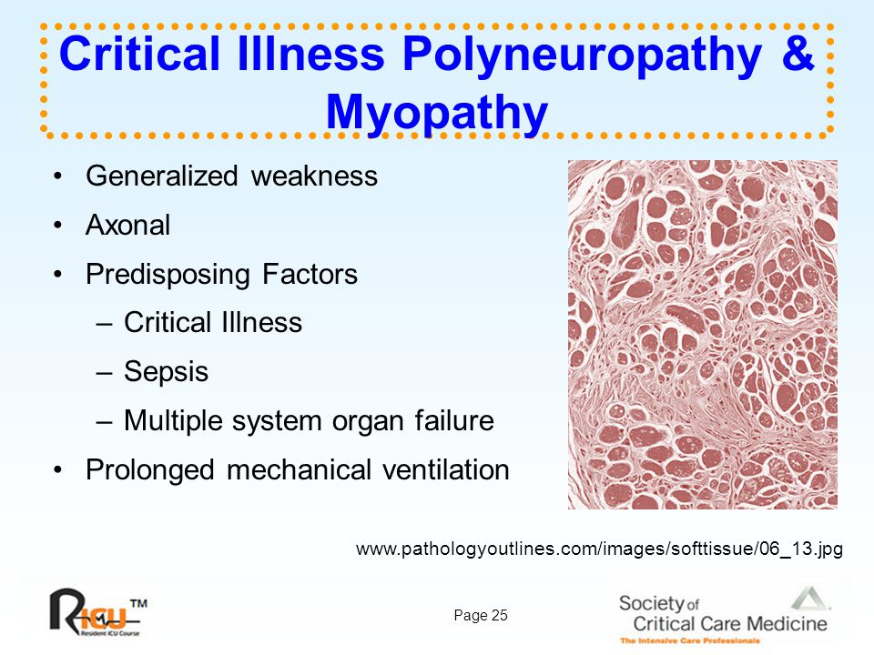 Page 25 Critical Illness Polyneuropathy & Myopathy Generalized weakness Axonal Predisposing Factors –Critical Illness –Sepsis –Multiple system organ f
