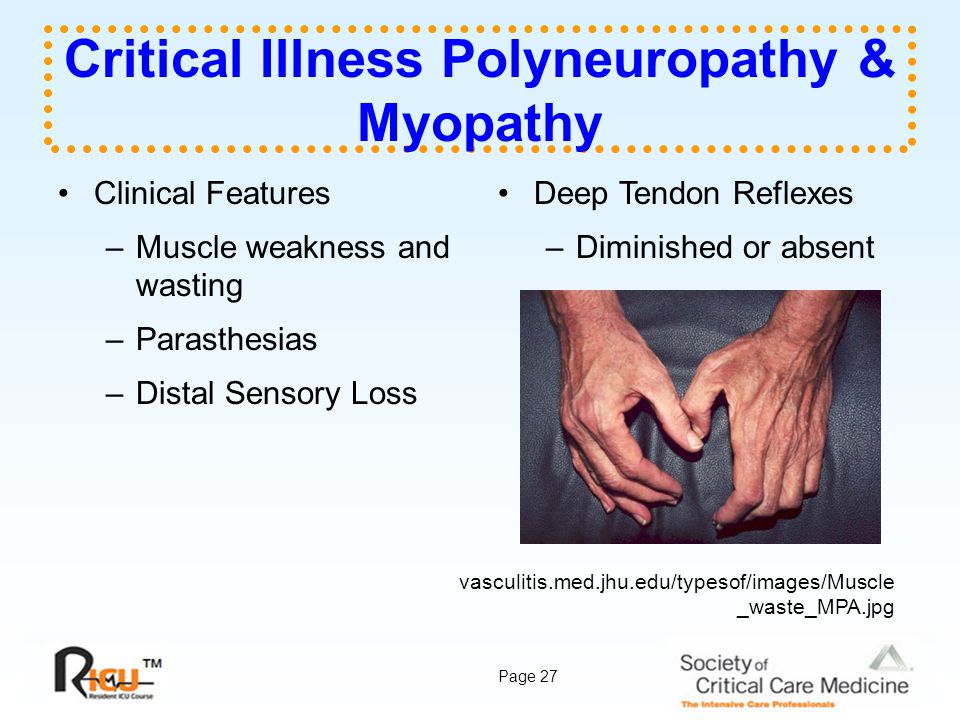 Page 27 Critical Illness Polyneuropathy & Myopathy Clinical Features –Muscle weakness and wasting –Parasthesias –Distal Sensory Loss Deep Tendon Refle