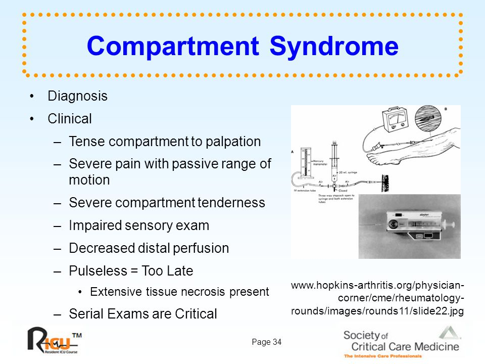 Page 34 Compartment Syndrome Diagnosis Clinical –Tense compartment to palpation –Severe pain with passive range of motion –Severe compartment tenderne