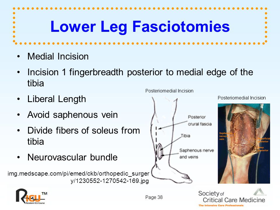 Page 38 Lower Leg Fasciotomies Medial Incision Incision 1 fingerbreadth posterior to medial edge of the tibia Liberal Length Avoid saphenous vein Divi