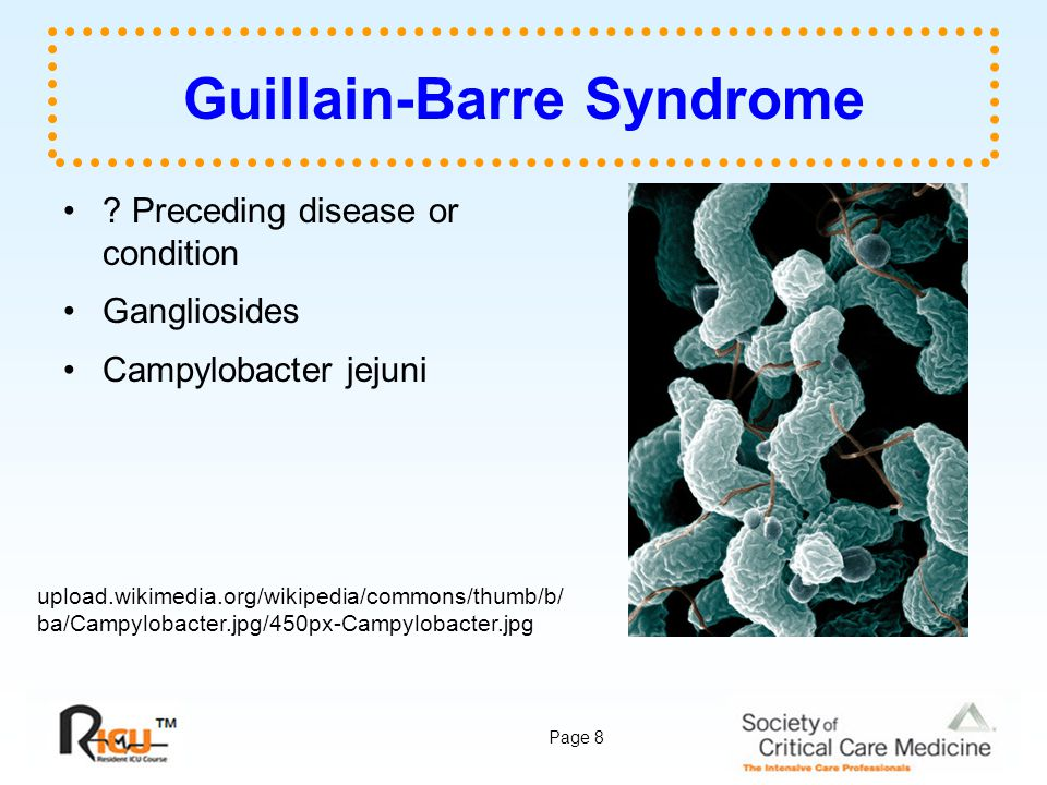 Page 9 Guillain-Barre Syndrome Clinical Findings –Subacute –Progressive weakness –Starts in legs –Sensory complaints –No objective sensory deficits –Diminished or absent deep tendon reflexes Myelin upload.wikimedia.org/wikipedia/commons/c/c1/Myeli nated_neuron.jpg drdavis.typepad.com/.a/6a00d834525ed16 9e201156f86664c970c-320pi