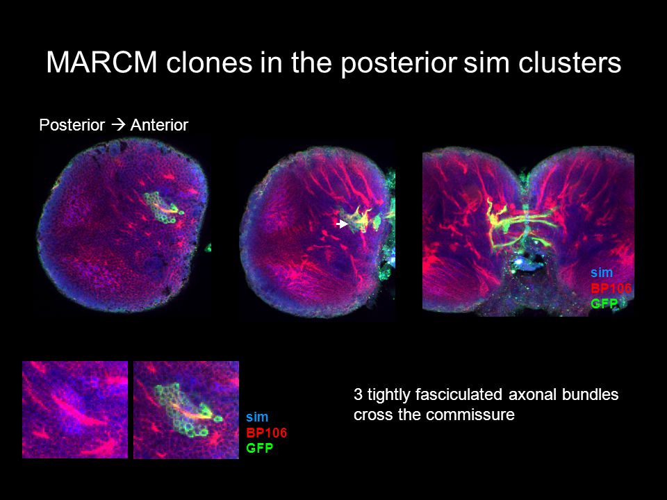 MARCM clones in the posterior sim clusters Posterior  Anterior sim BP106 GFP sim BP106 GFP  3 tightly fasciculated axonal bundles cross the commissure