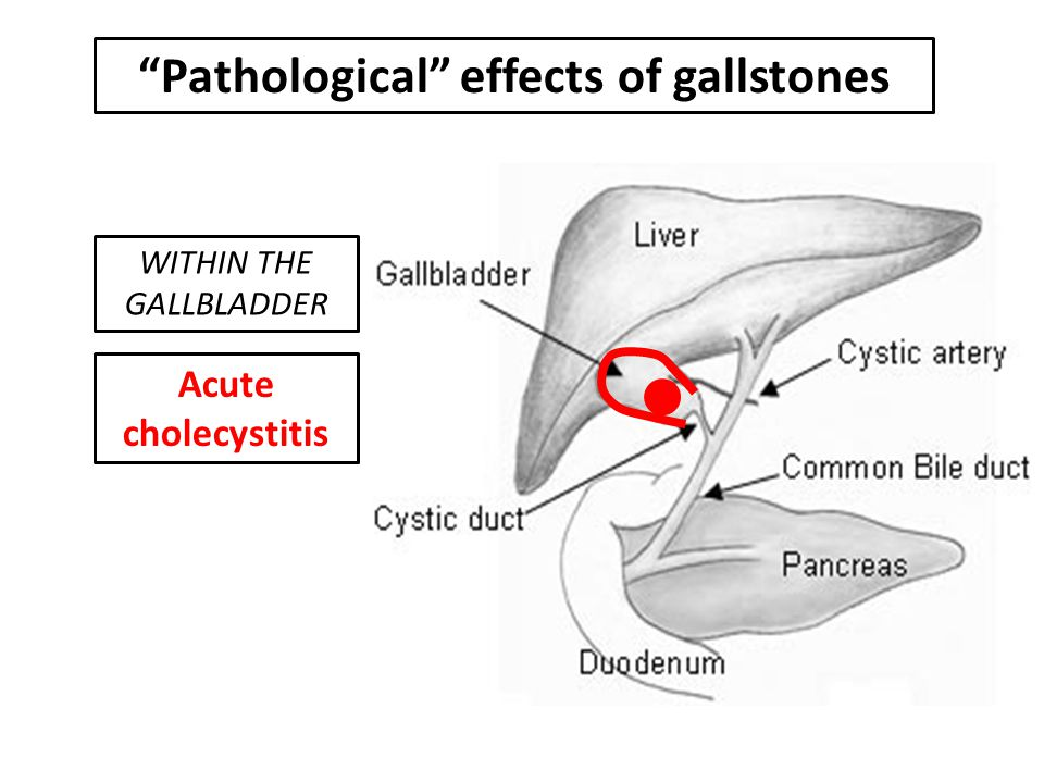 Pathological effects of gallstones Acute cholecystitis WITHIN THE GALLBLADDER