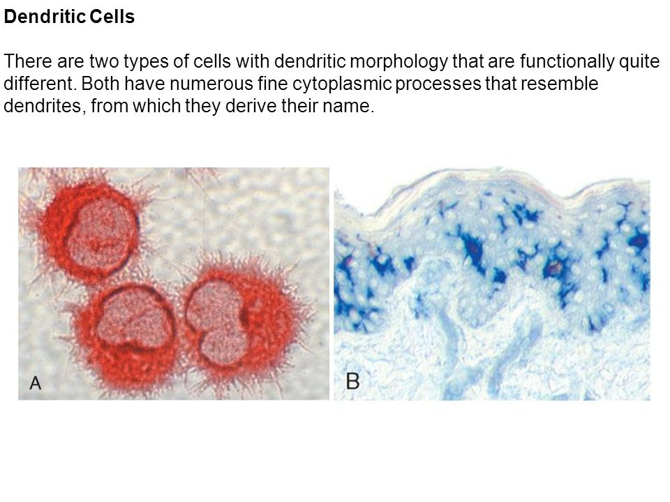 Dendritic Cells There are two types of cells with dendritic morphology that are functionally quite different.