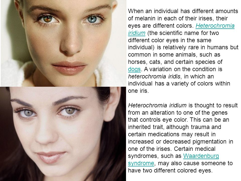 When an individual has different amounts of melanin in each of their irises, their eyes are different colors. Heterochromia iridium (the scientific na