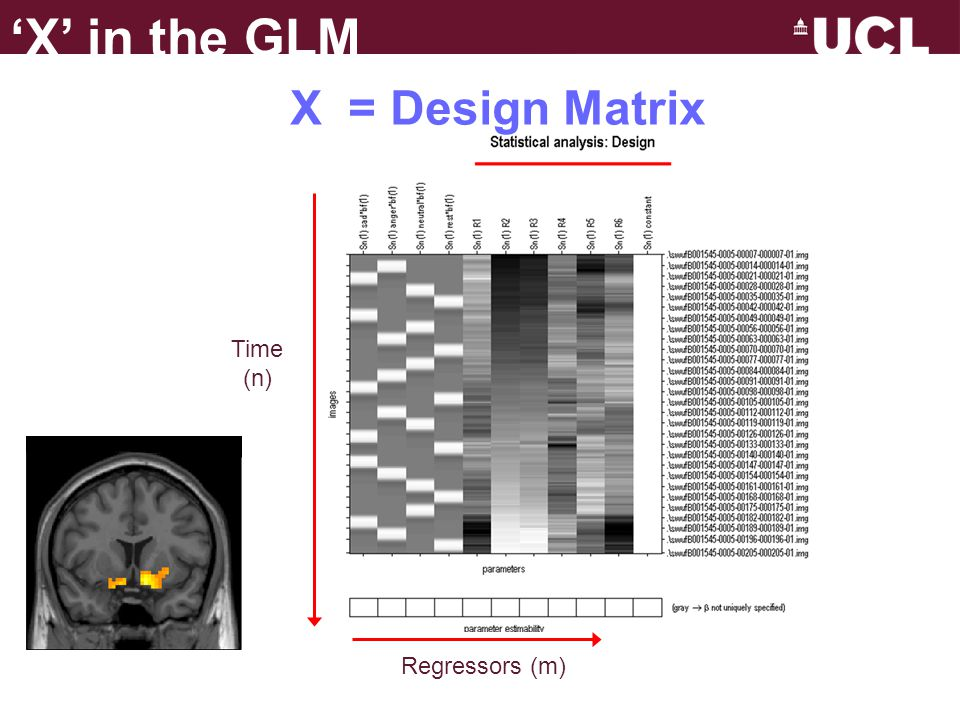  Regressors – represent the hypothesised contribution of your experiment to the fMRI time series.