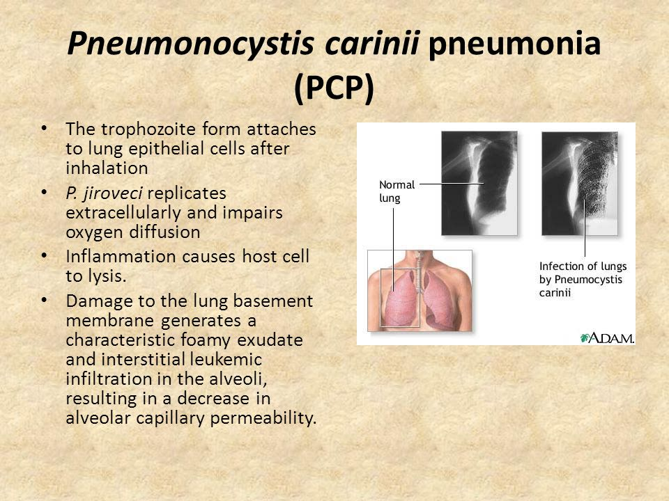 Pneumonocystis carinii pneumonia (PCP) The trophozoite form attaches to lung epithelial cells after inhalation P. jiroveci replicates extracellularly