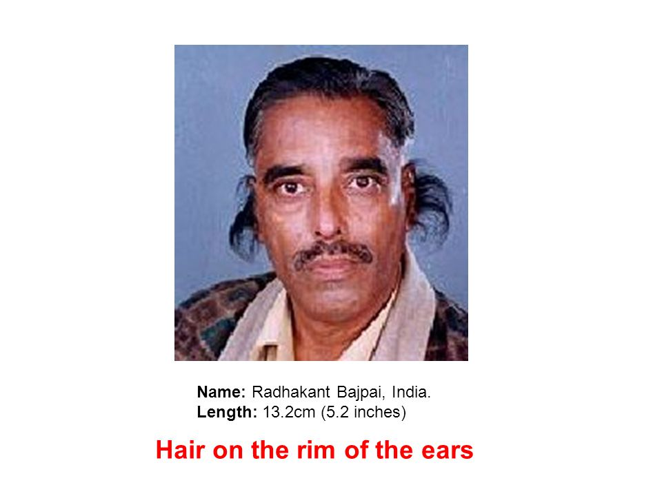 Name: Radhakant Bajpai, India. Length: 13.2cm (5.2 inches) Hair on the rim of the ears