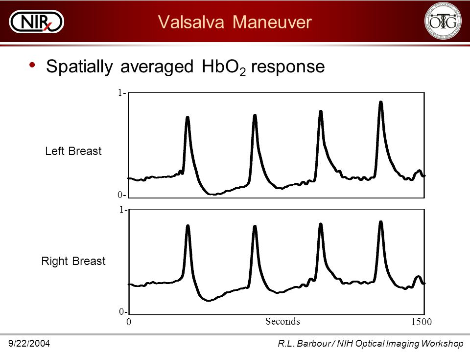 9/22/2004R.L. Barbour / NIH Optical Imaging Workshop Valsalva Maneuver Spatially averaged HbO 2 response Seconds 0 1500 Left Breast Right Breast 1- 0-