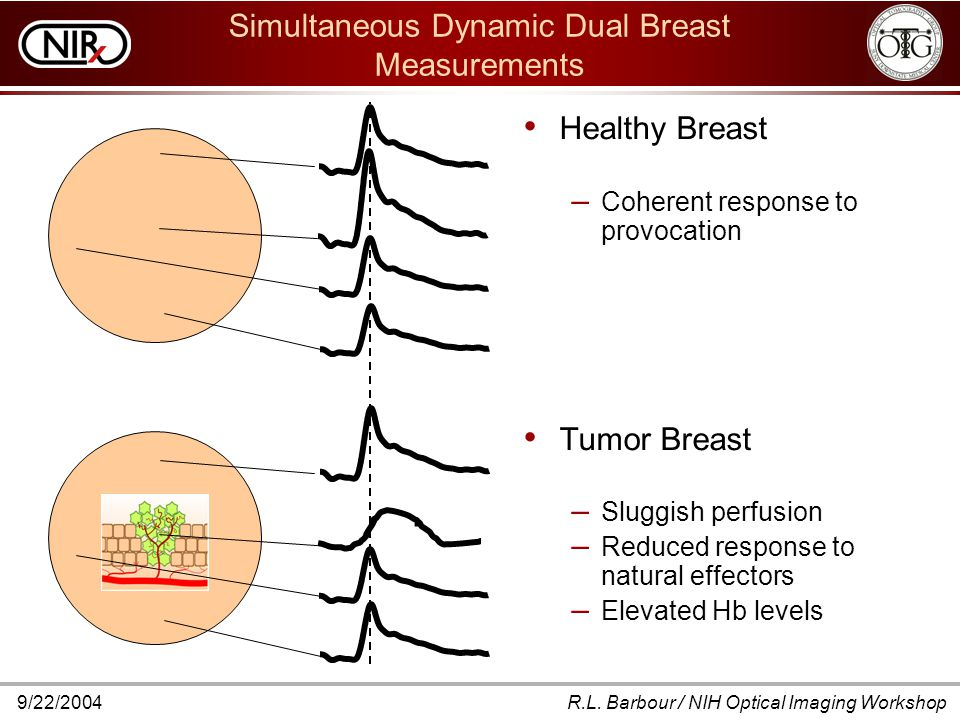 9/22/2004R.L. Barbour / NIH Optical Imaging Workshop Simultaneous Dynamic Dual Breast Measurements Healthy Breast – Coherent response to provocation T