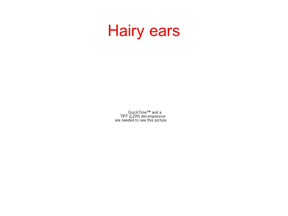 Hairy ears