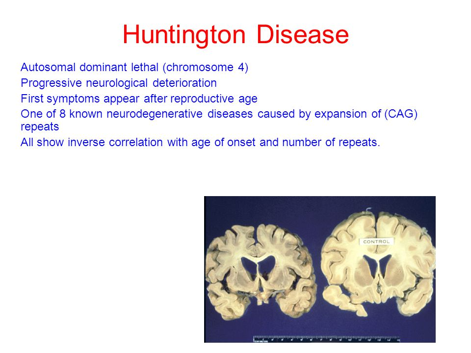 Huntington Disease Autosomal dominant lethal (chromosome 4) Progressive neurological deterioration First symptoms appear after reproductive age One of