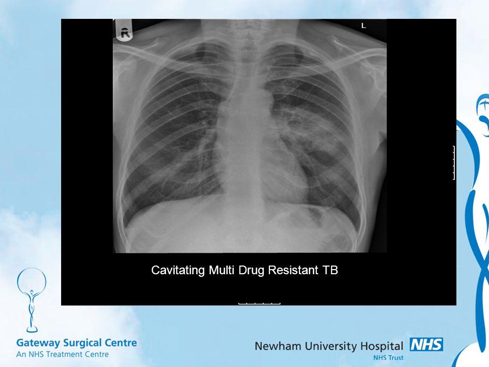 Cavitating Multi Drug Resistant TB