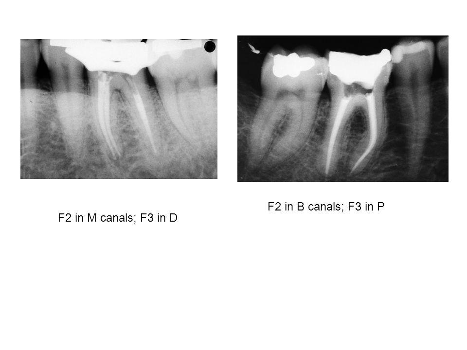 F2 in M canals; F3 in D F2 in B canals; F3 in P