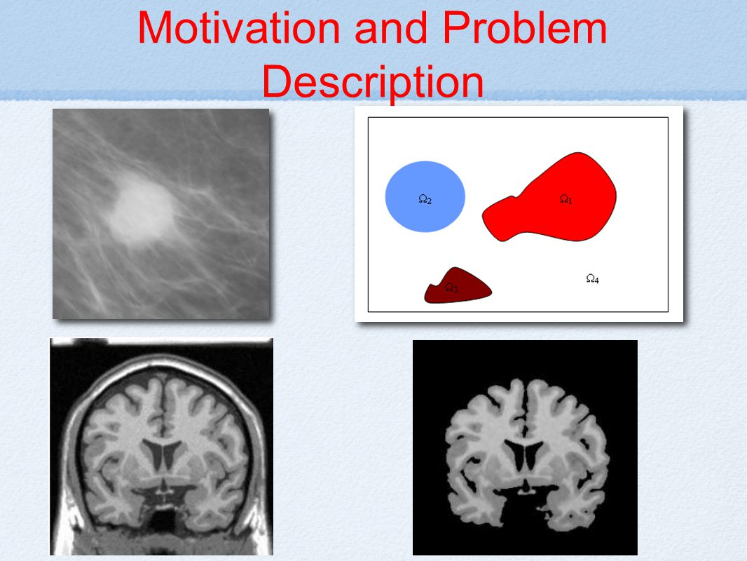 conclusion Brain extraction algorithm using a graph cut based active contour has been presented.