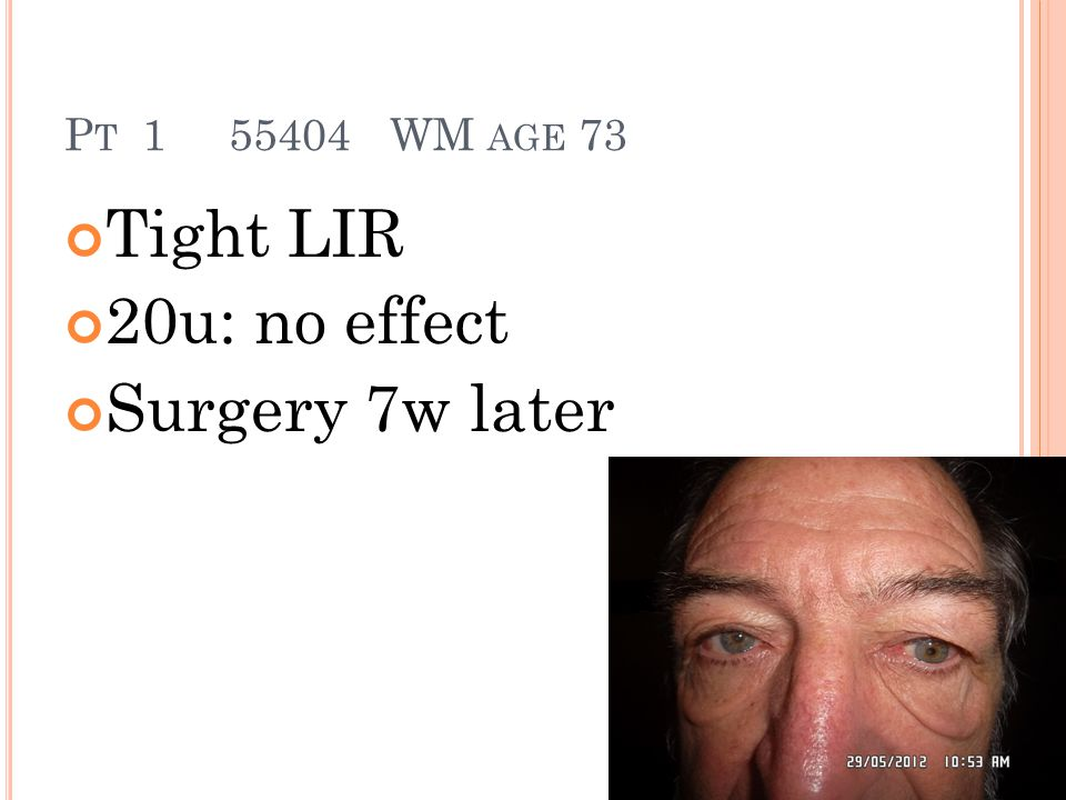 P T 1 55404 WM AGE 73 Tight LIR 20u: no effect Surgery 7w later