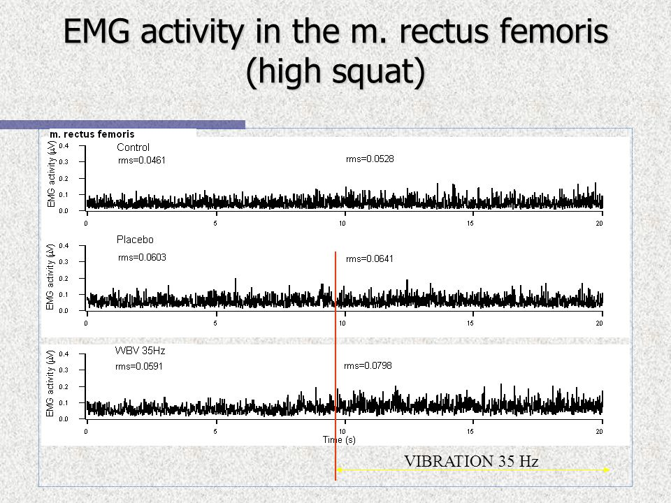 EMG activity in the m. rectus femoris (high squat) VIBRATION 35 Hz