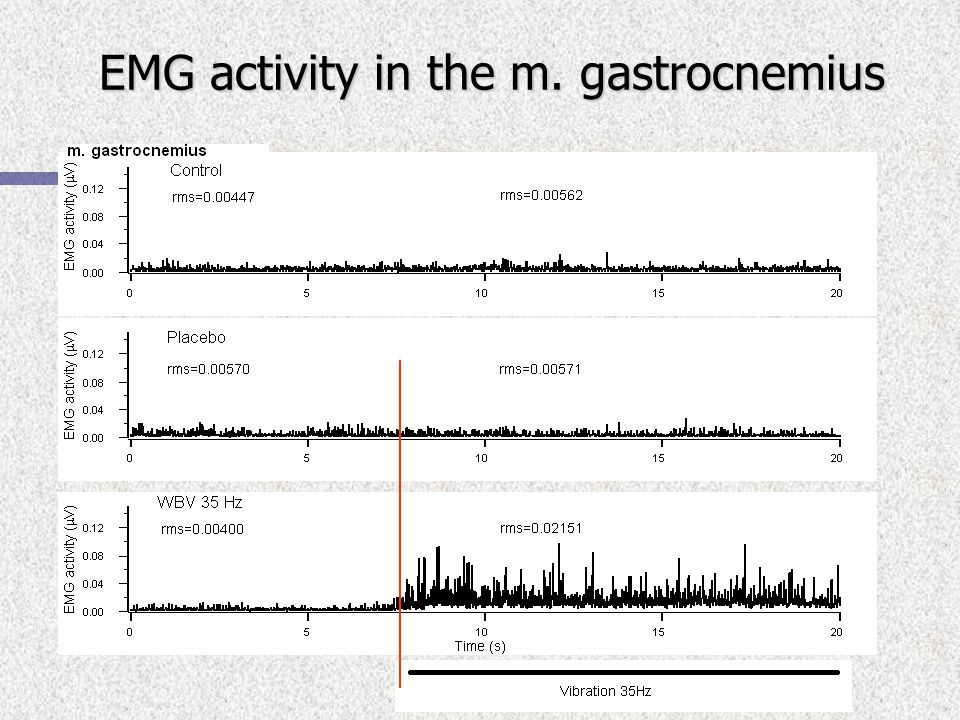 EMG activity in the m. gastrocnemius