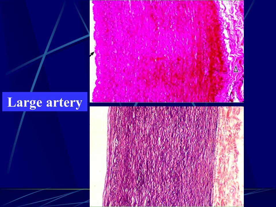 Large artery