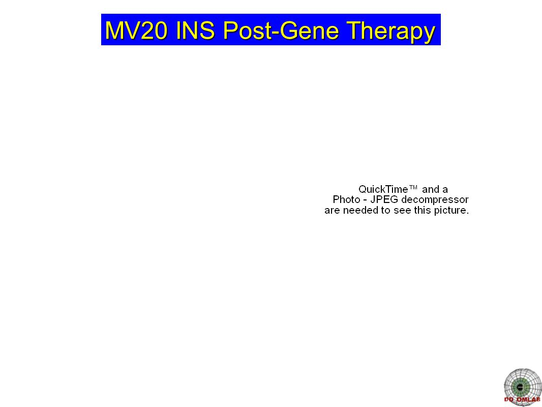 MV20 INS Post-Gene Therapy
