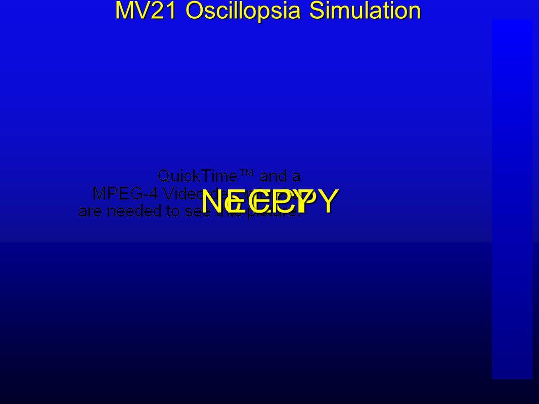 No ECPY ECPY MV21 Oscillopsia Simulation