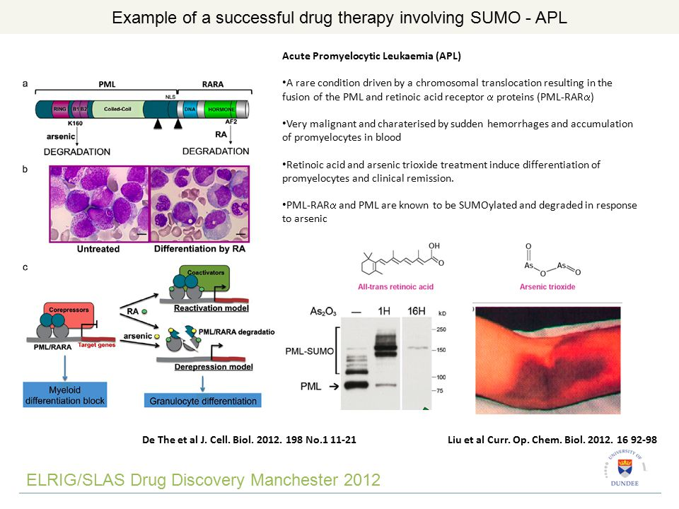 ELRIG/SLAS Drug Discovery Manchester 2012 Example of a successful drug therapy involving SUMO - APL De The et al J.
