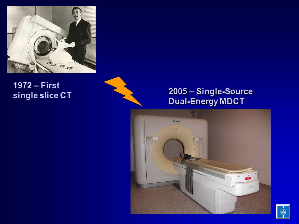 1972 – First single slice CT 2005 – Single-Source Dual-Energy MDCT