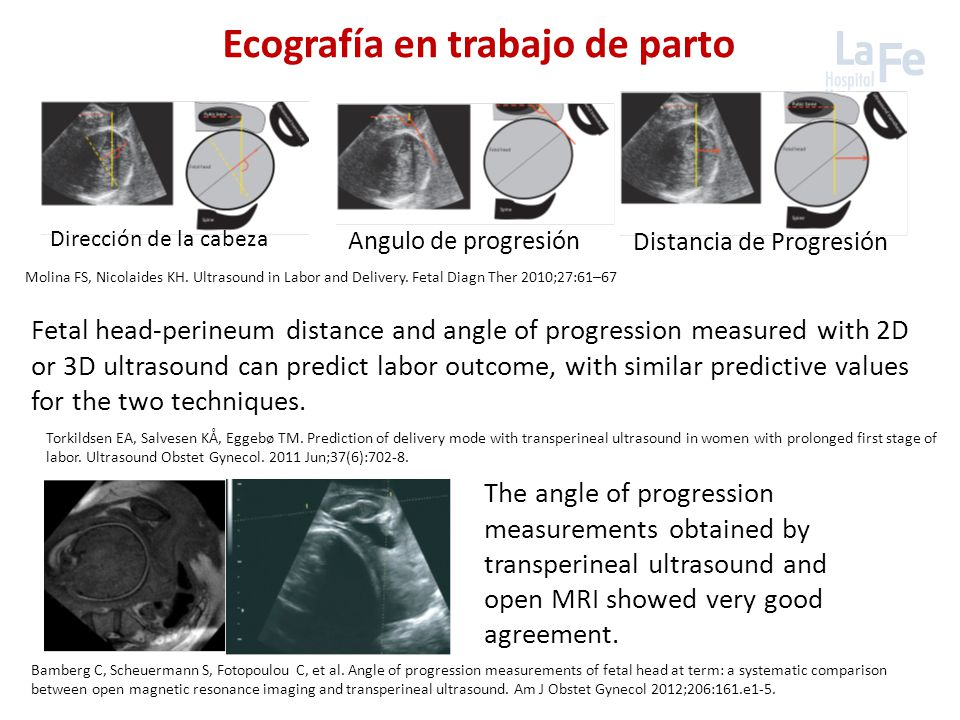 Torkildsen EA, Salvesen KÅ, Eggebø TM. Prediction of delivery mode with transperineal ultrasound in women with prolonged first stage of labor. Ultraso