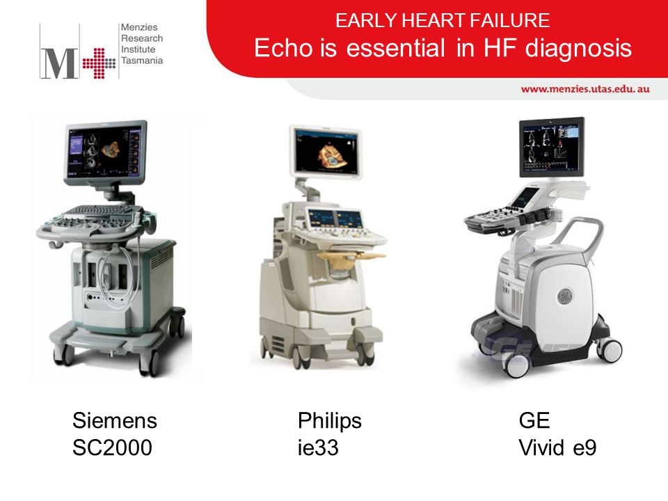 EARLY HEART FAILURE Echo is essential in HF diagnosis Siemens SC2000 Philips ie33 GE Vivid e9