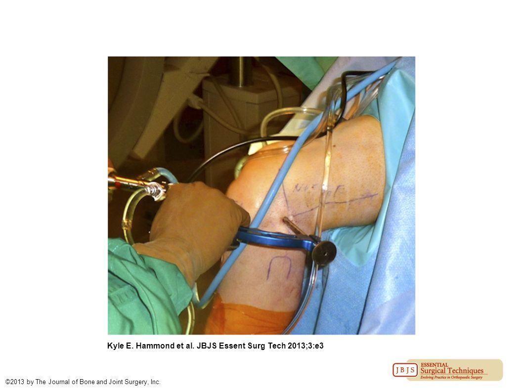 Kyle E. Hammond et al. JBJS Essent Surg Tech 2013;3:e3 ©2013 by The Journal of Bone and Joint Surgery, Inc.